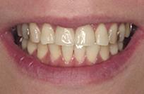 治療後_症例1、ラミネートベニア治療に際し、前歯の歯肉ラインが僅かにアンバランスであった症例