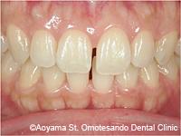 治療前_すきっ歯をラミネートべニアで治した症例-1