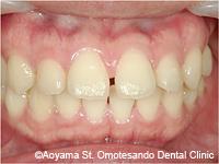 治療前_すきっ歯をラミネートべニアで治した症例-2