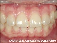 治療後_すきっ歯をラミネートべニアで治した症例-2