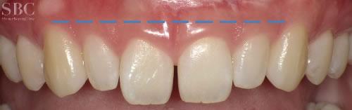治療前_前歯の隙間と歯茎が見えすぎるお悩み