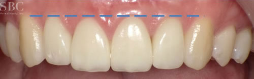 治療後_前歯の隙間と歯茎が見えすぎるお悩み