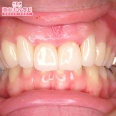 治療後_ガタガタの前歯のお悩み