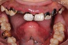 治療前_多数歯が虫歯のお悩み