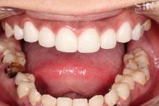 治療後_多数歯が虫歯のお悩み
