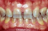 治療前_【治療例 1】前歯6本をラミネートベニア修復した症例