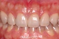 治療後_【治療例 1】前歯6本をラミネートベニア修復した症例
