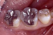 治療前_臼歯部咬合面(奥歯のかみ合わせ部分)の充填例