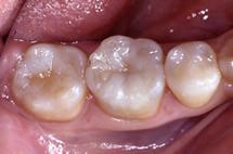 治療後_臼歯部咬合面(奥歯のかみ合わせ部分)の充填例
