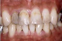 治療前_ラミネートベニア、オールセラミッククラウン、ハイブリッドインレー  などを使用した症例