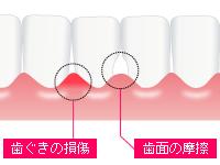 自宅で行う簡単ケア 歯間ブラシ