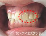 治療前_治療例2.