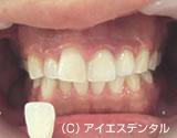治療後_治療例2.