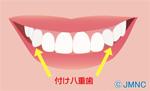 付け八重歯ブームが気になる!-