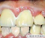 治療前_歯科用レーザーによる歯周病治療の症例
