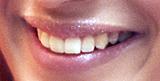 口元の種類と特徴