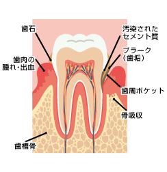 歯周病とアンチエイジング