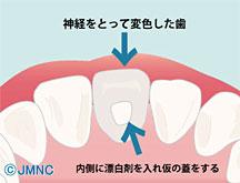 歯の色と変色の原因 -神経を取った後の変色-
