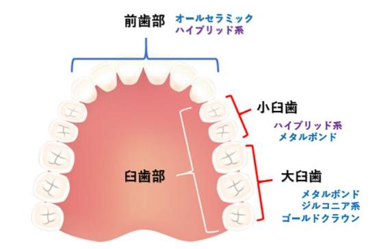 各素材が適している歯の場所