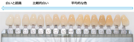 """歯の色見本表""""シェードガイド"""""""