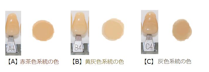 歯の色の系統と色の濃さの分類