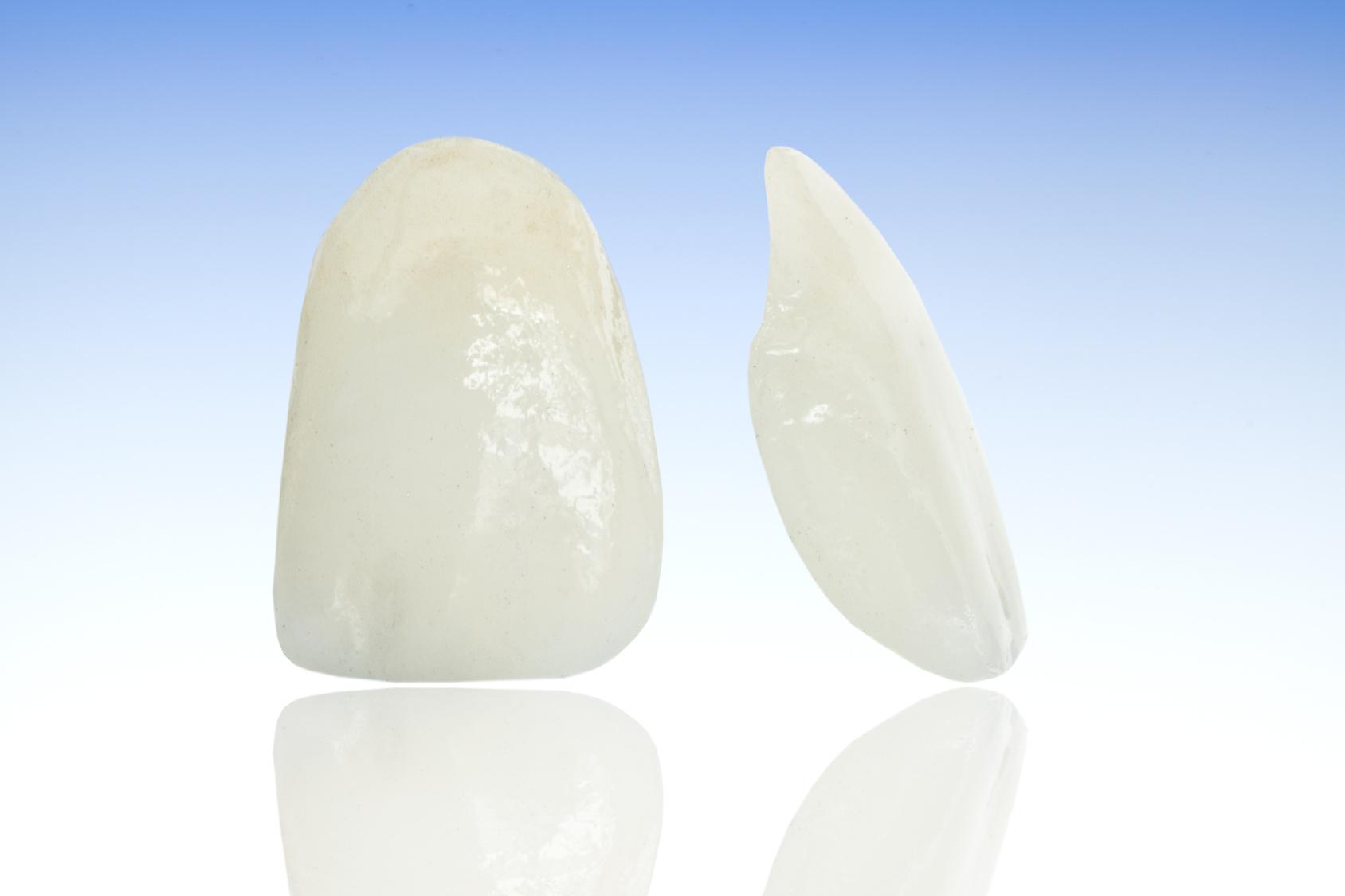 前歯のすき間をなくす「ラミネートべニア治療」
