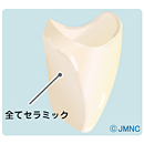 神経のない(歯髄を取った)歯の審美治療