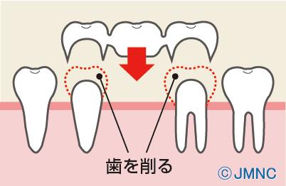 歯の被せ物のブリッジとは?費用や治療、メリット・デメリットなど|審美歯科ネット