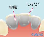 前歯を白い歯にするときの選択肢