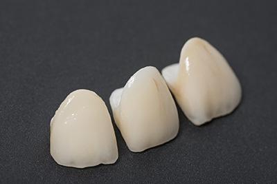 歯になじむ白いセラミック!ハイブリッドセラミックってどんな素材?