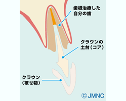 差し歯の構造図