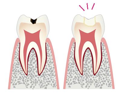 歯が欠けた、すり減ってきた…小さい歯の修復はダイレクトボンディングで解決!