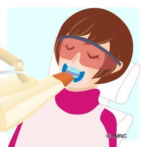ホワイトニング・クリーニングの無料イラスト素材集(歯科医院向け)- 審美歯科ネット