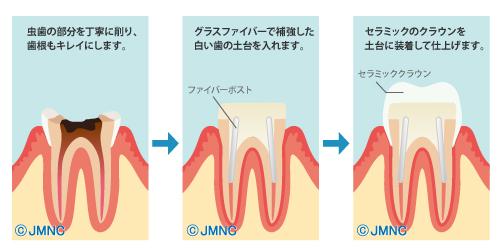 セラミック治療の無料イラスト素材集(歯科医院向け)- 審美 ...