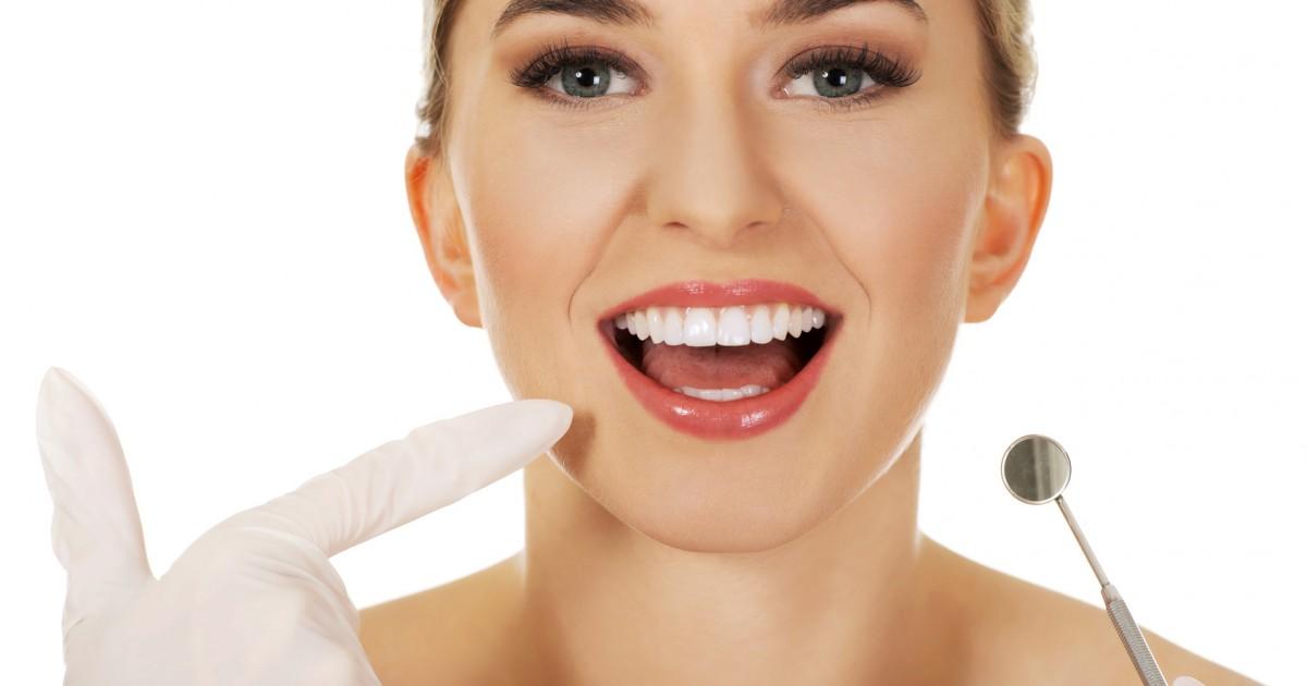 歯の黄ばみ、自分で白くできる??
