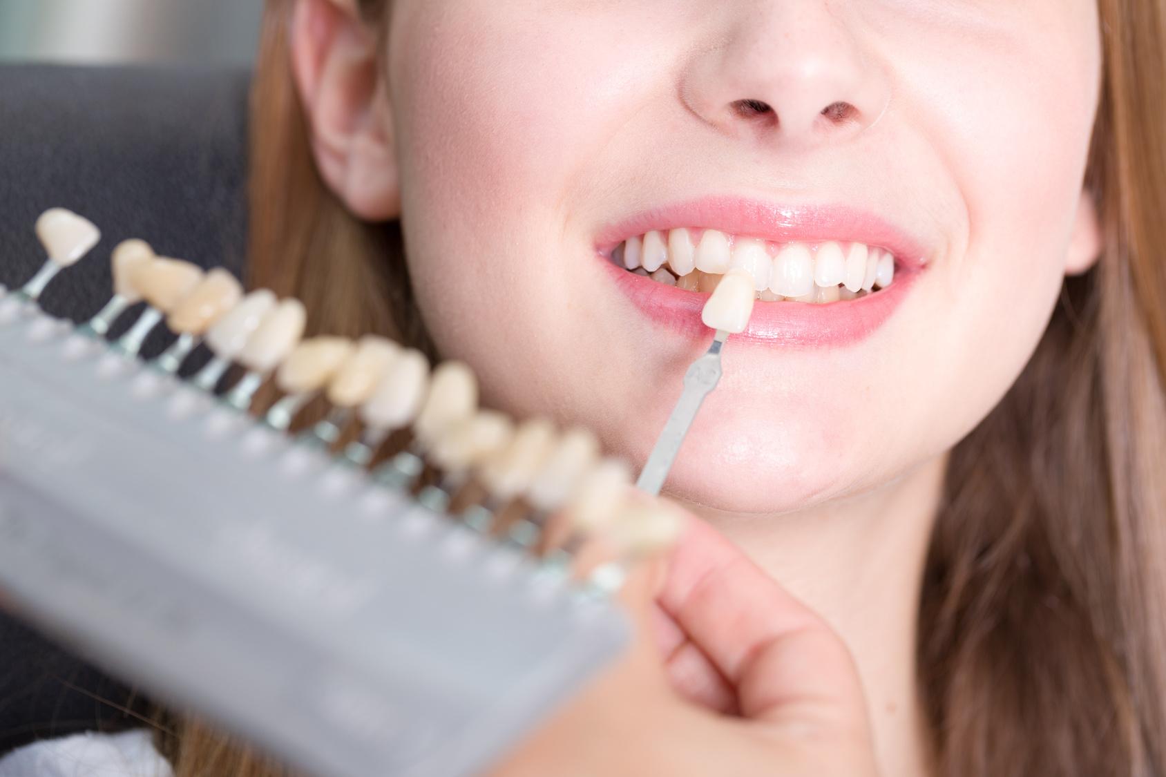 Beim Zahnarzt - Zahnfarbe fr eine Krone vergleichen