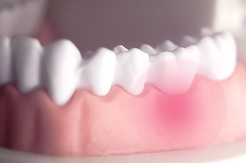 歯ぐき自体の炎症