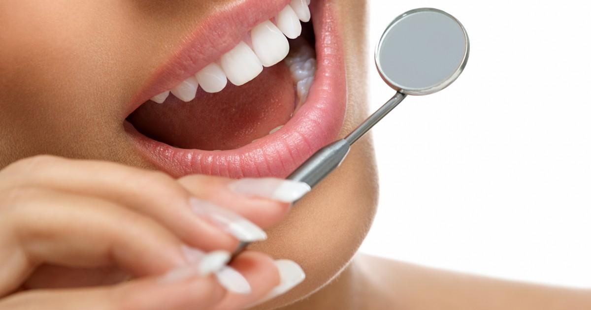 歯の付け爪?!薬剤を使わずに歯を白くする方法とは