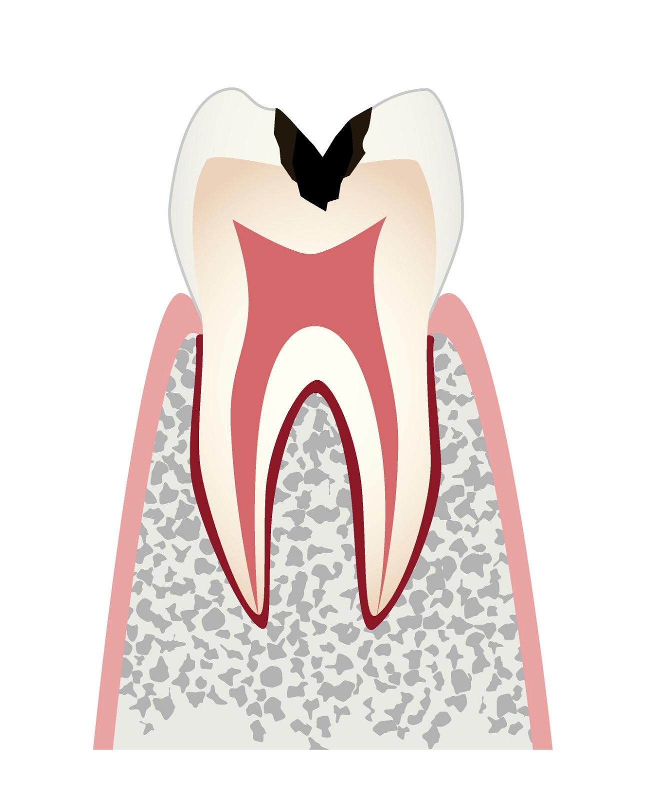 虫歯の進行c2