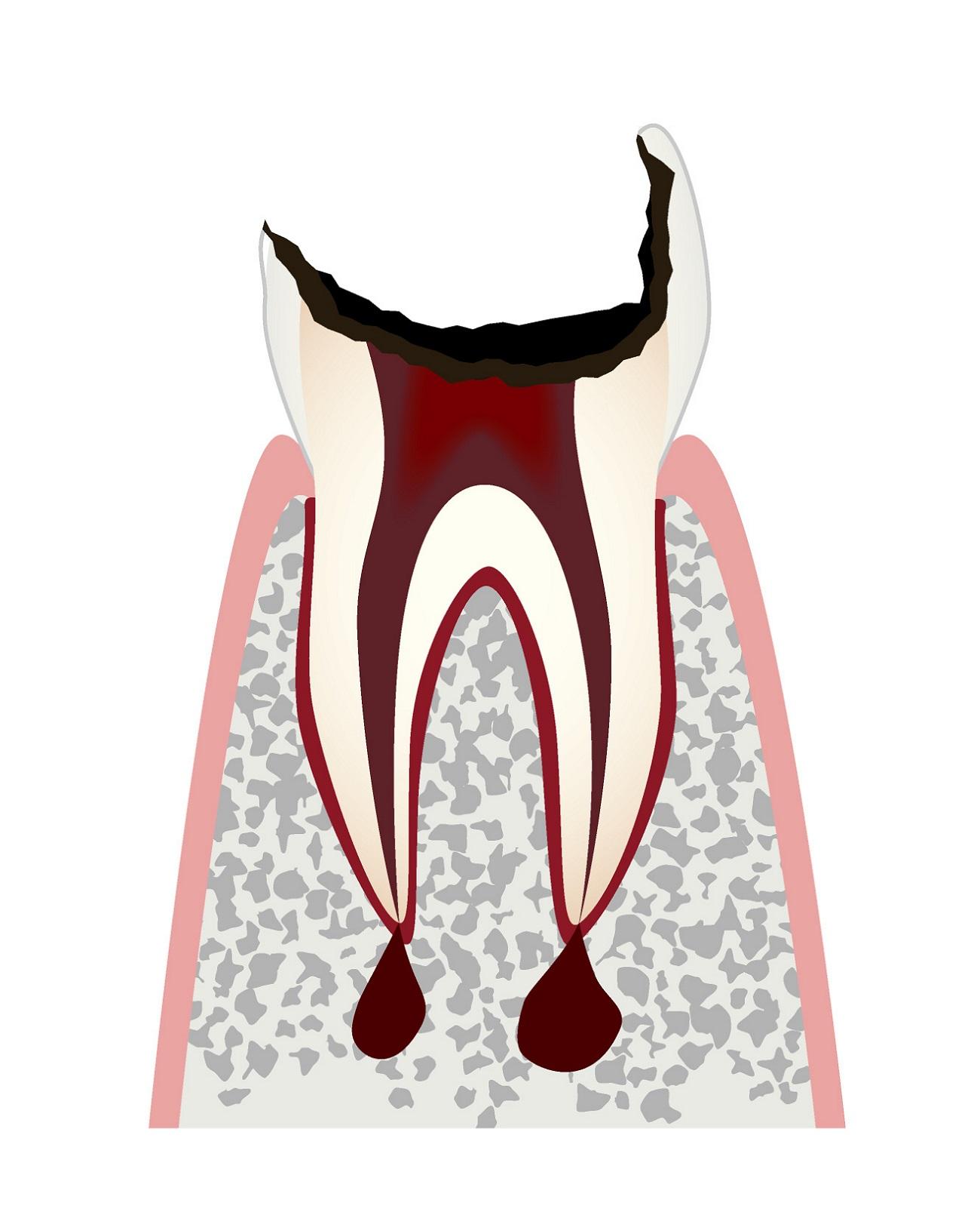 虫歯の進行c4