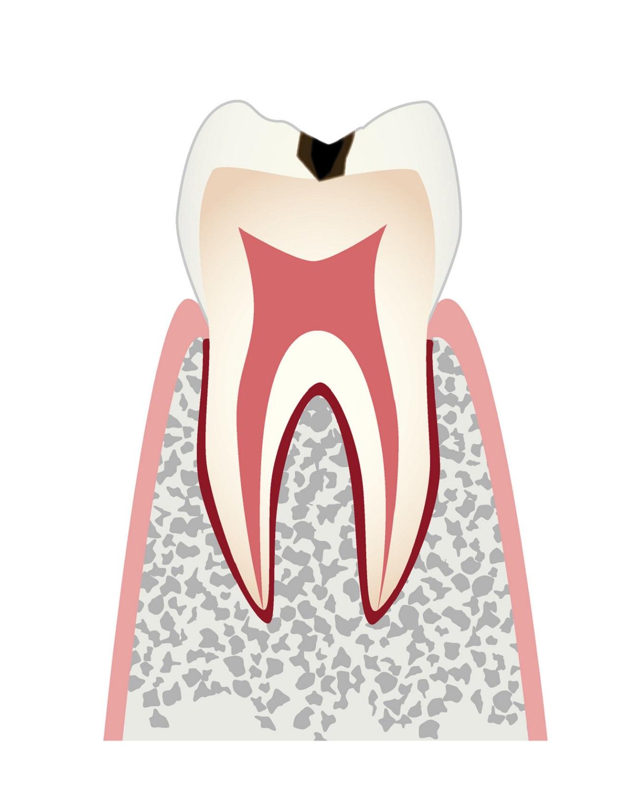 虫歯の進行c1