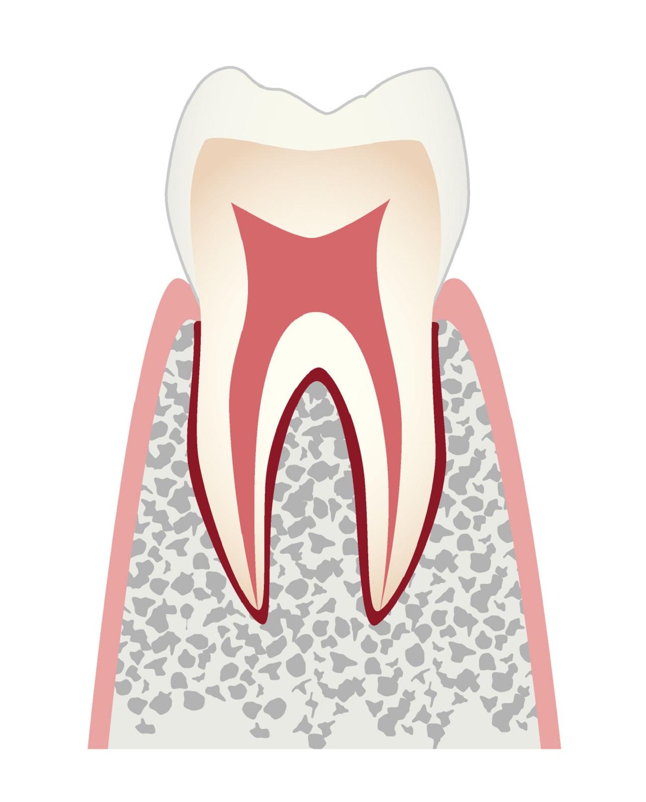 虫歯の進行co