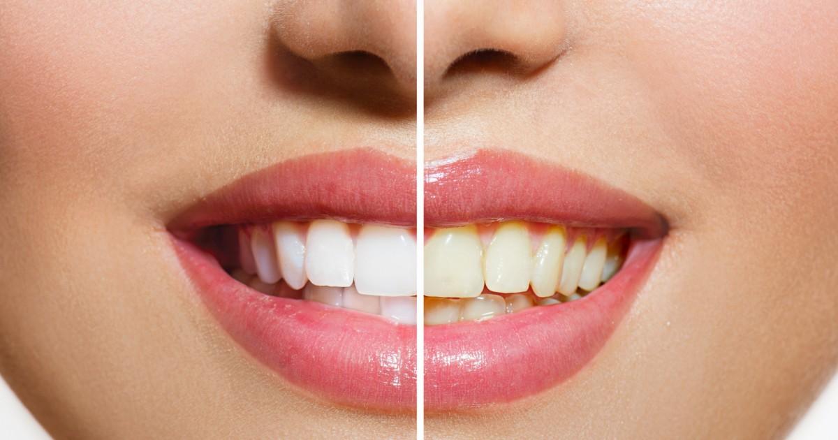 白い歯の基準は?理想の歯の色って?