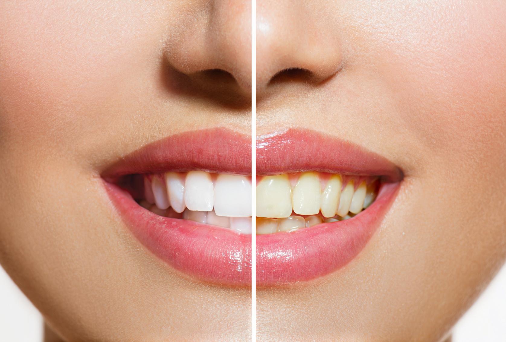 白い歯ってどこから?理想の歯の色って?