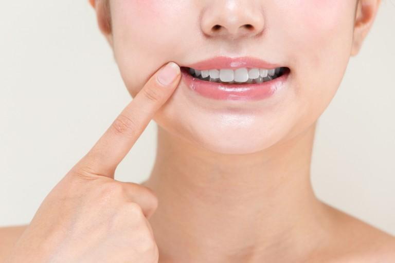 歯を指差す女性